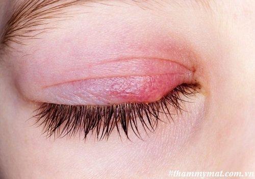 Cách chữa viêm mí mắt trên
