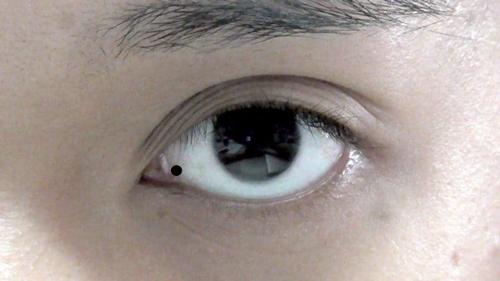 nốt ruồi trong mắt có ý nghĩa gì