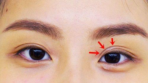mắt ba mí có ý nghĩa gì