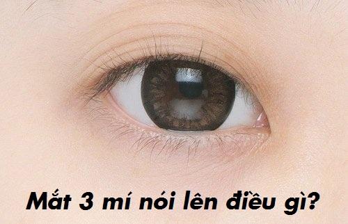 mắt ba mí là gì