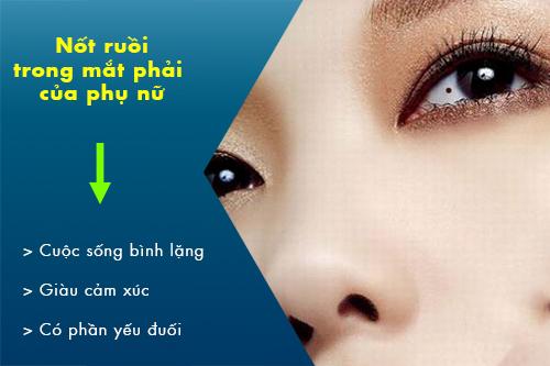 có nốt ruồi trong mắt