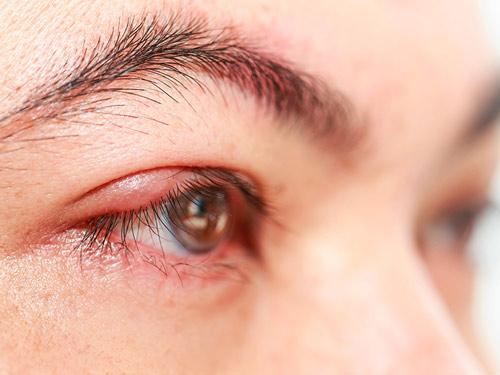 sưng mí mắt trên và đau