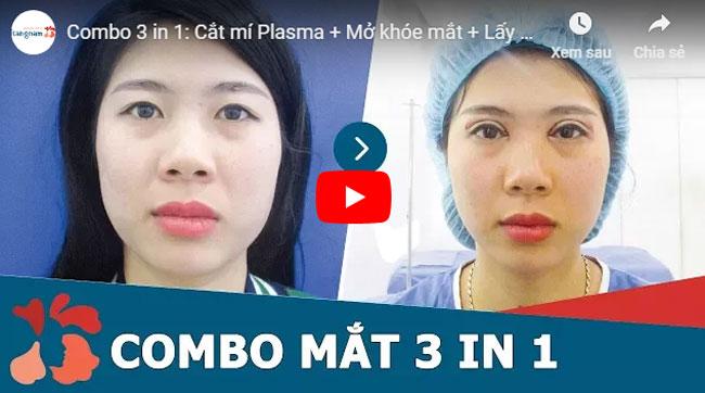 Video chữa mắt híp 1