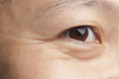 cách trị thâm mắt bằng muối