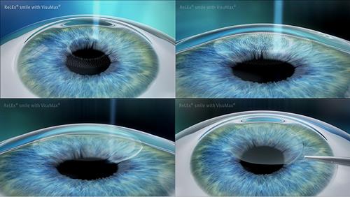 bệnh viện mắt quốc tế nhật bản có tốt không