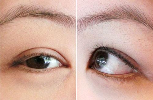 cắt mí mắt bị trợn