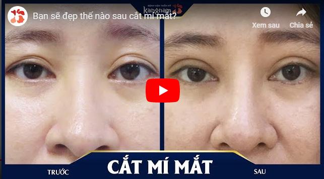 Video cắt mí mắt ở đâu đẹp