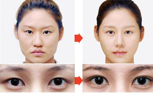 công nghệ mắt diều hâu