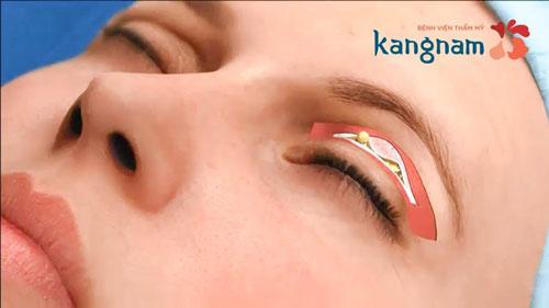 cắt mỡ mắt