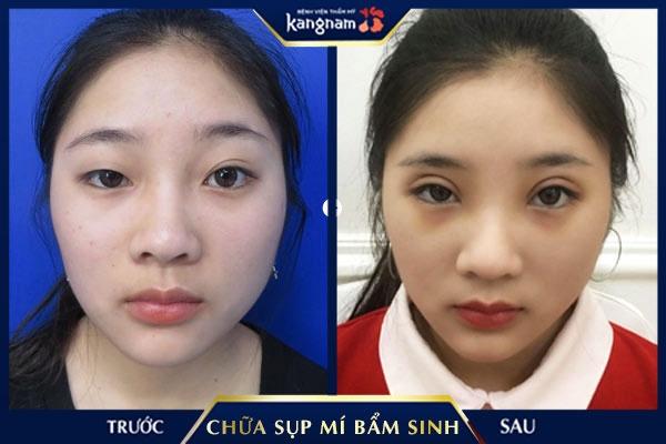 chữa mắt sụp mí tại Bệnh viện Thẩm mỹ Kangnam
