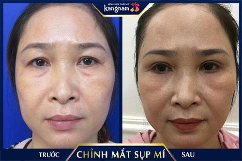 chữa mắt sụp mí ở Hà Nội