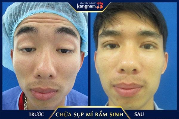 chữa sụp mí bẩm sinh ở Bệnh viện Kangnam