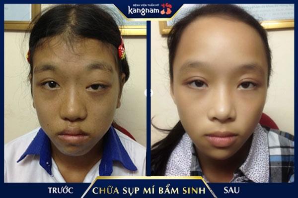 chữa sụp mí bẩm sinh tại bệnh viện Kangnam