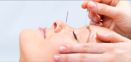 cách chữa sụp mí mắt bằng bấm huyệt