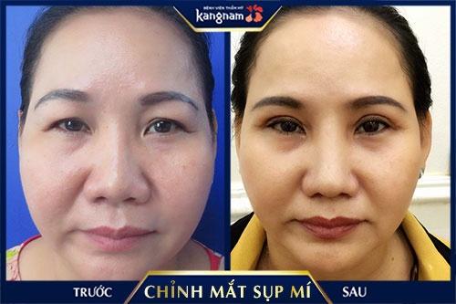 chữa sụp mí mắt Kangnam Hồ Chí Minh